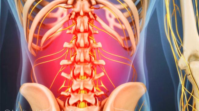 Como prevenir el dolor de espalda producido por la natación